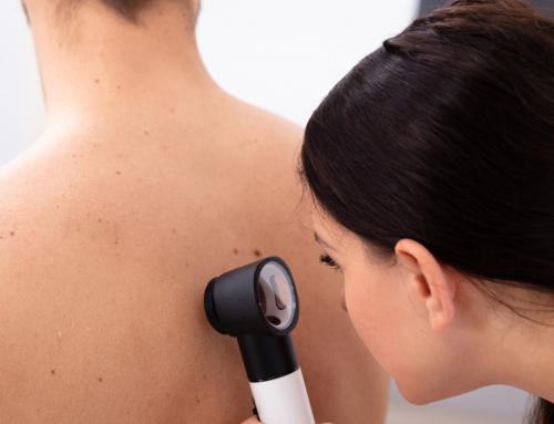 Trattamento neoformazioni e tumori della pelle
