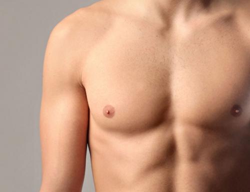 Ginecomastia e chirurgia andrologica intima